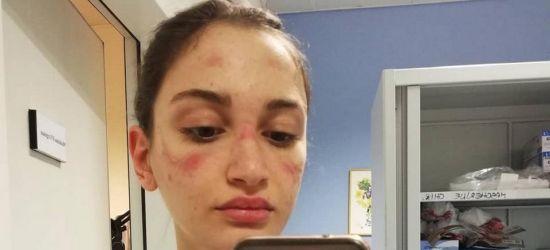 Wstrząsająca relacja włoskiej pielęgniarki. Apel do młodych ludzi