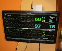 Nowoczesny sprzęt trafił na oddział dziecięcy sanockiego szpitala